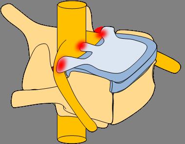 Smärtan förläggs beroende på var diskbråcket trycker.