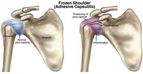 Ont i axeln - Frozen shoulder