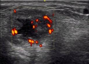 Doppler vid ultraljudsdiagnostik
