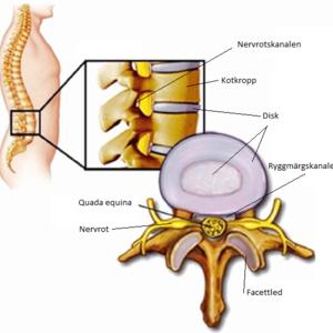Ont i ländryggen, anatomi